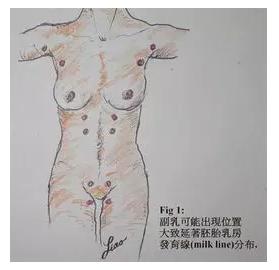副乳 腋下淋巴结堵塞 每位女性都要看