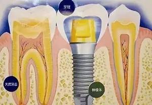 种植牙的全过程
